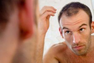 Hair-Loss-Treatment22