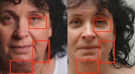 μεσοθεραπεία προσώπου φωτογραφίες