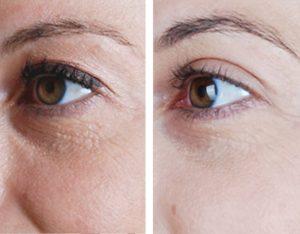 eyelid-surgery-1100x858