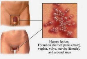 έρπης γεννητικών οργάνων εικόνες