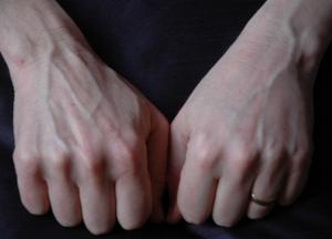 ανανέωση χεριών με εμφύτευμα
