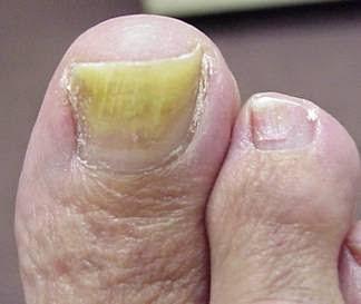 μυκητίαση νύχια