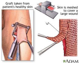 skin-graft1