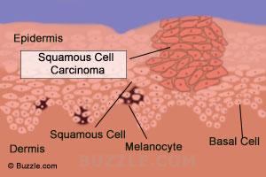 ακανθοκυτταρικό καρκίνωμα εικόνες