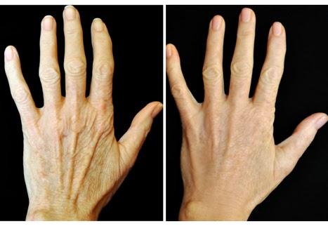 Lifting χεριών πριν - μετά